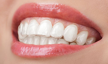 woman wearing teeth whitening tray